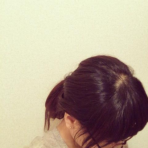 30代 抜け毛